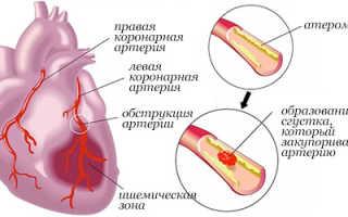 Продукты полезные после инфаркта