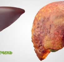Полезные продукты при циррозе печени
