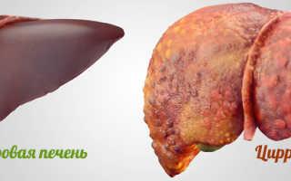 Что полезно при циррозе печени